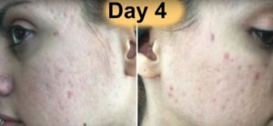 acne treatment day 4