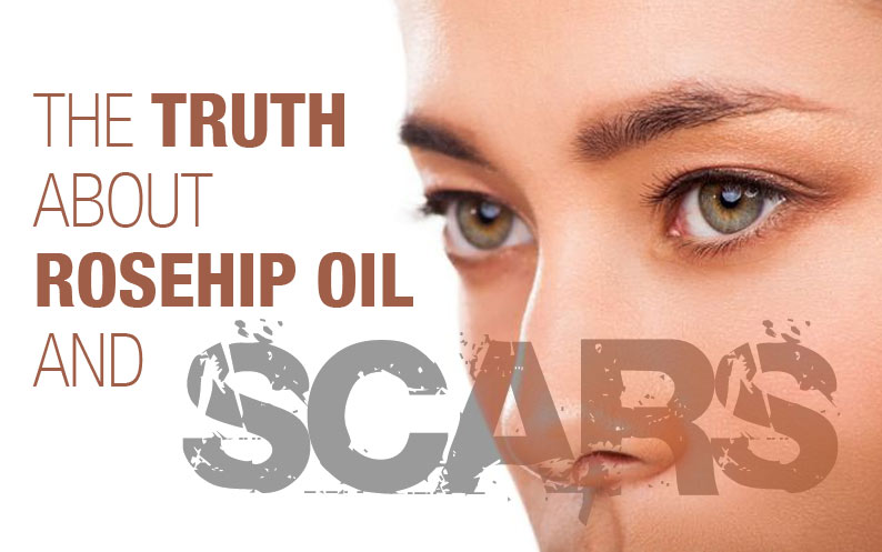 Can Rosehip Seed Oil REALLY reduce scars