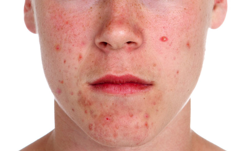 acne of face
