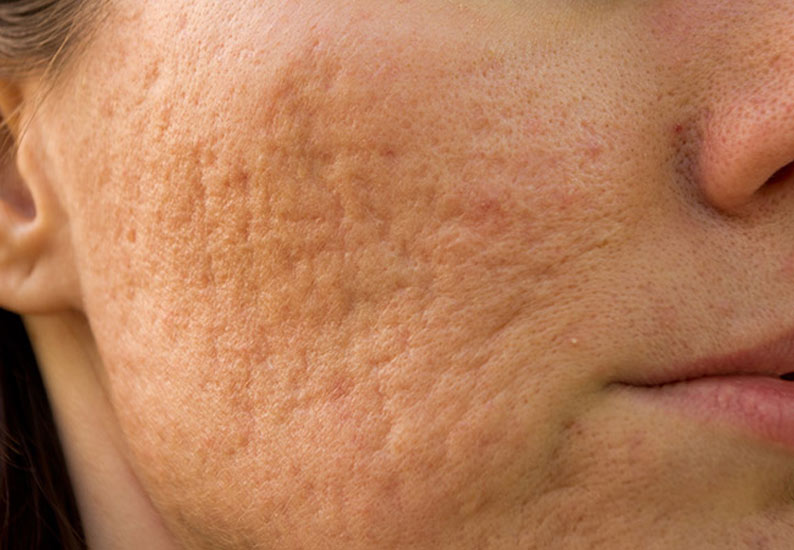 womans face showing acne scars