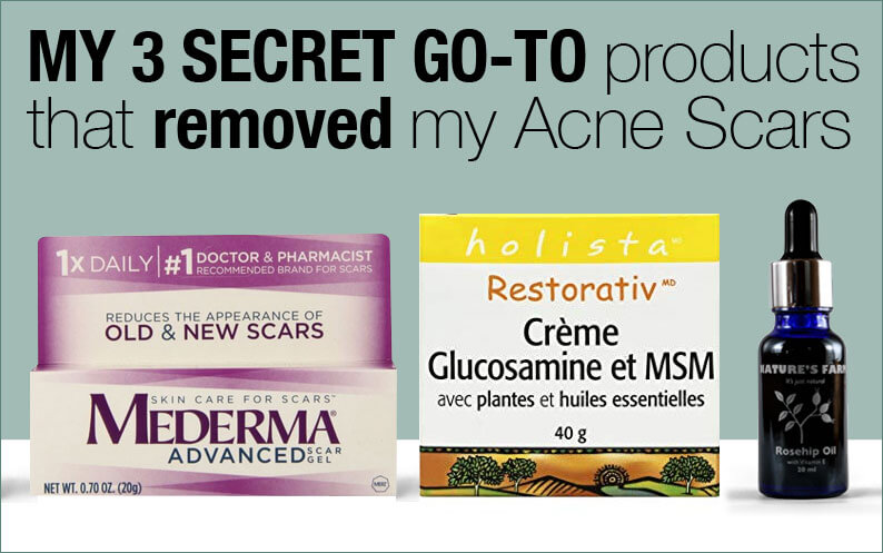 Acne Scar Removal, a must read if you