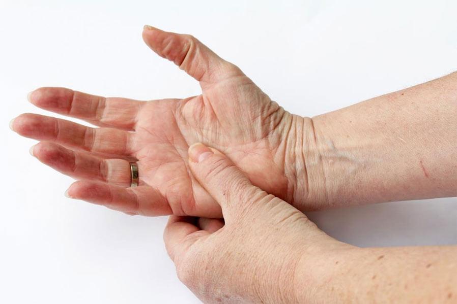 Rosehip herbal remedy for Rheumatoid Arthritis
